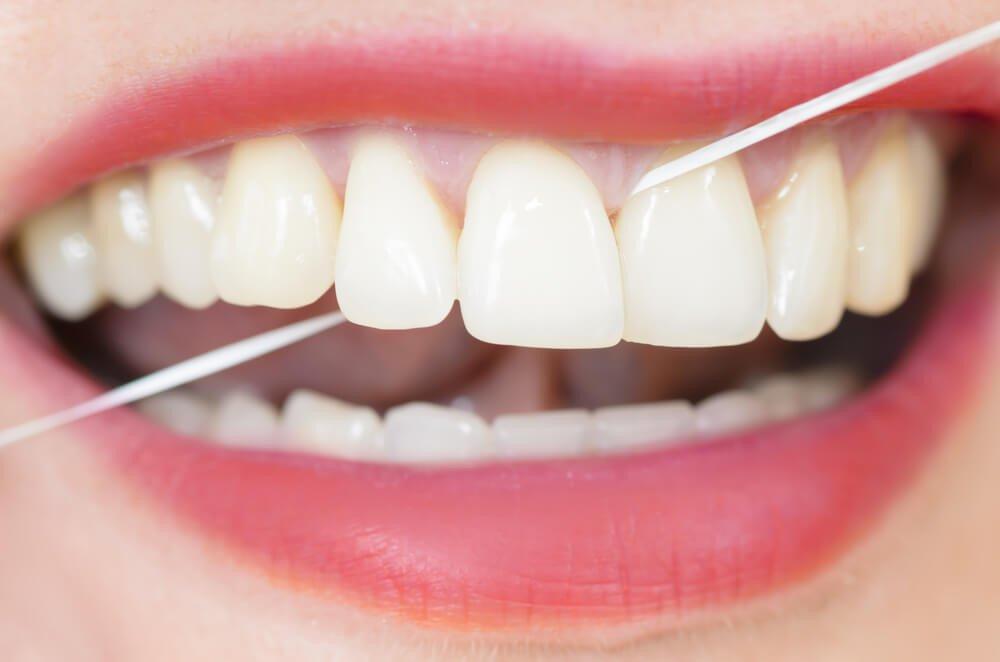 Diş İpleri
