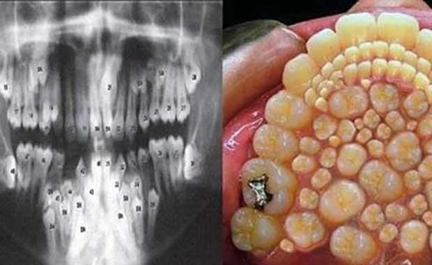 Hiperdonti Hastalığı