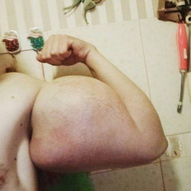 Kirill Tereshin balondan şişirme kimyasaldan indirme kolları.