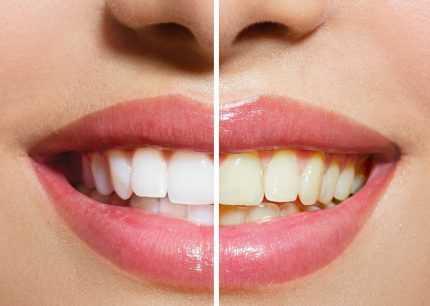 Ceviz Kabuğuyla Diş Tartarından Doğal Şekilde Kurtulun