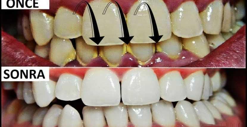 Diş Tartarı Nedir, Neden Oluşur, Nasıl Yok Edilir, Temizliği