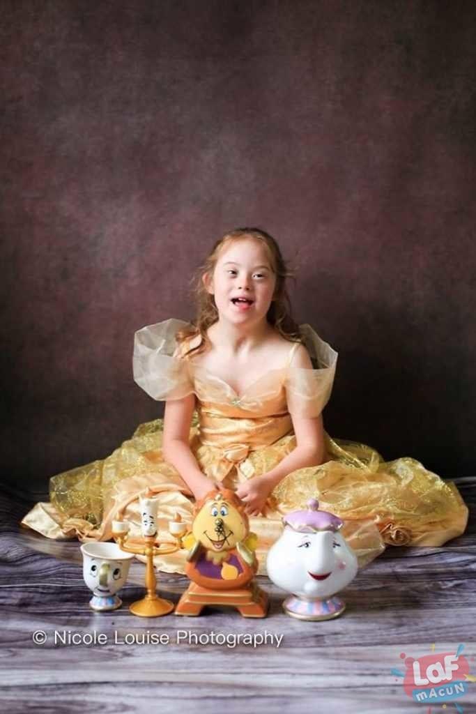 Down sendromlu çocukların disney karakterleri