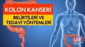KOLON KANSERİ BELİRTİLERİ VE TEDAVİSİ