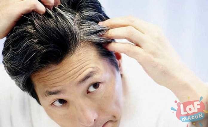 Saç Beyazlaması ve Tedavisi