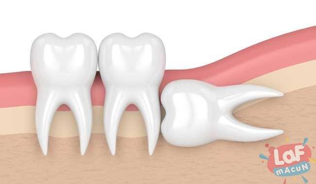 diş ağrısı sebepleri