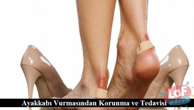 Ayakkabı Vurmasından Korunma ve Tedavisi