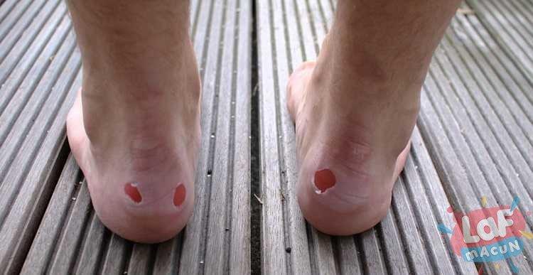 Ayakkabı Vurması Neden Olur?